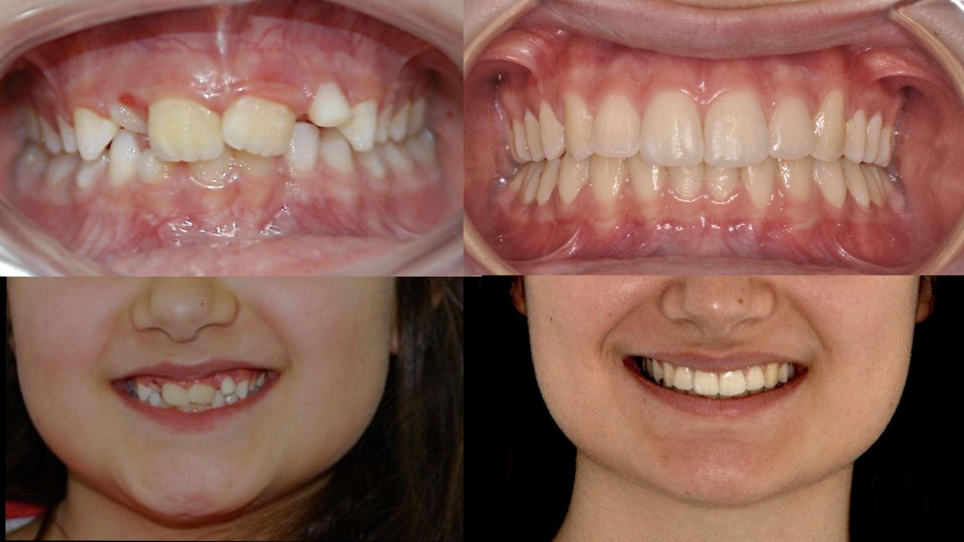Ortodonzia Intercettiva con EPR su denti da latte e Ortodonzia Fissa superiore e inferiore