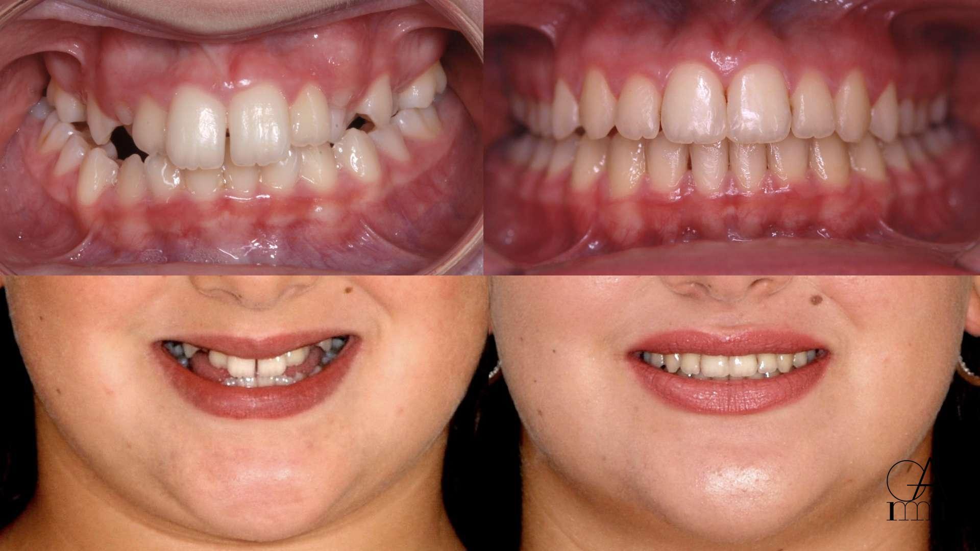 Trattamento con Epr e ortodonzia fissa tradizionale