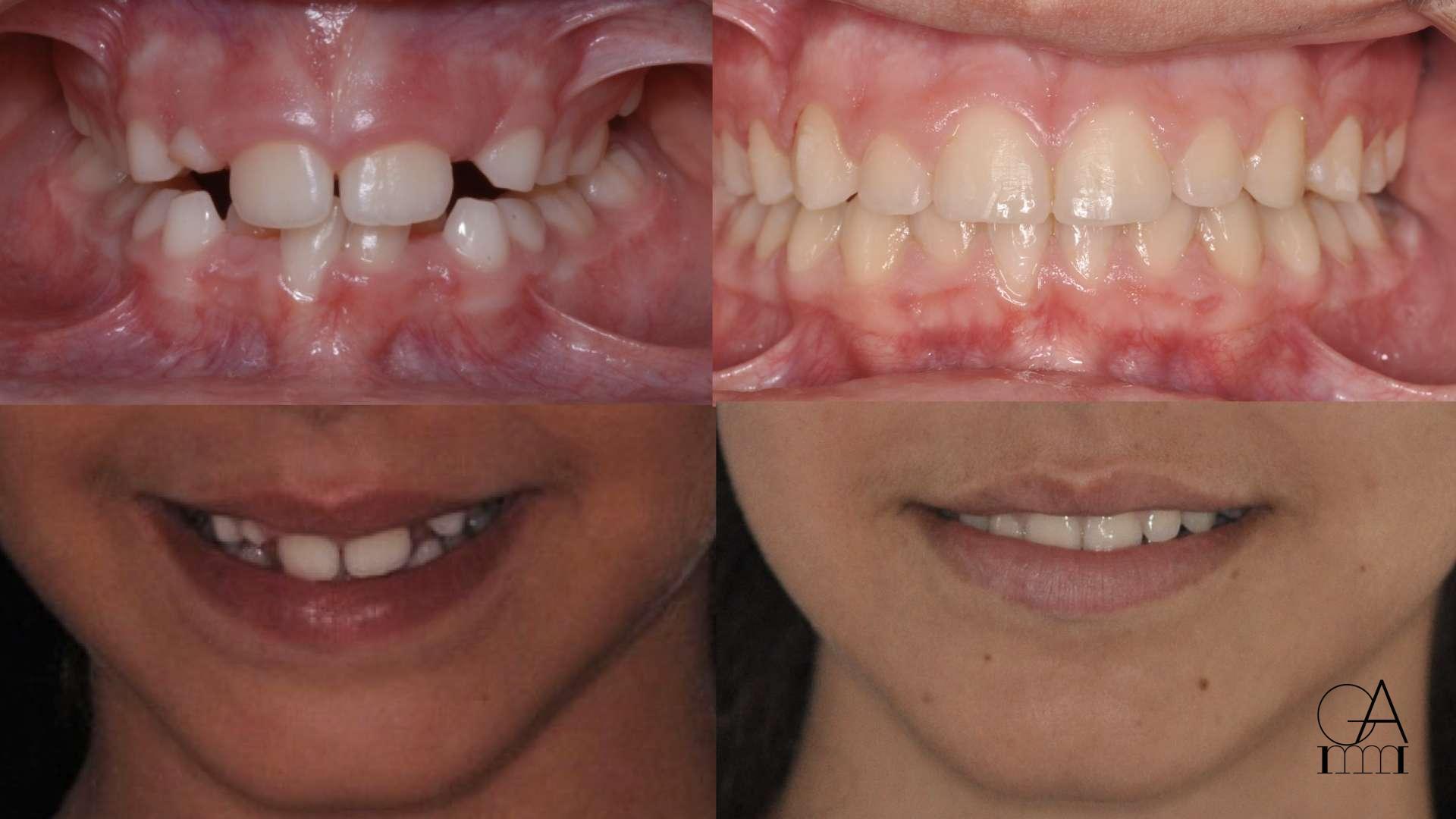 Ortodonzia Intercettiva con EPR e Trattamento di Ortodonzia Fissa